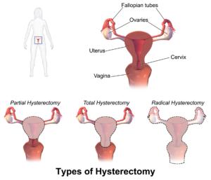 Laparoscopic-Hysterectomy